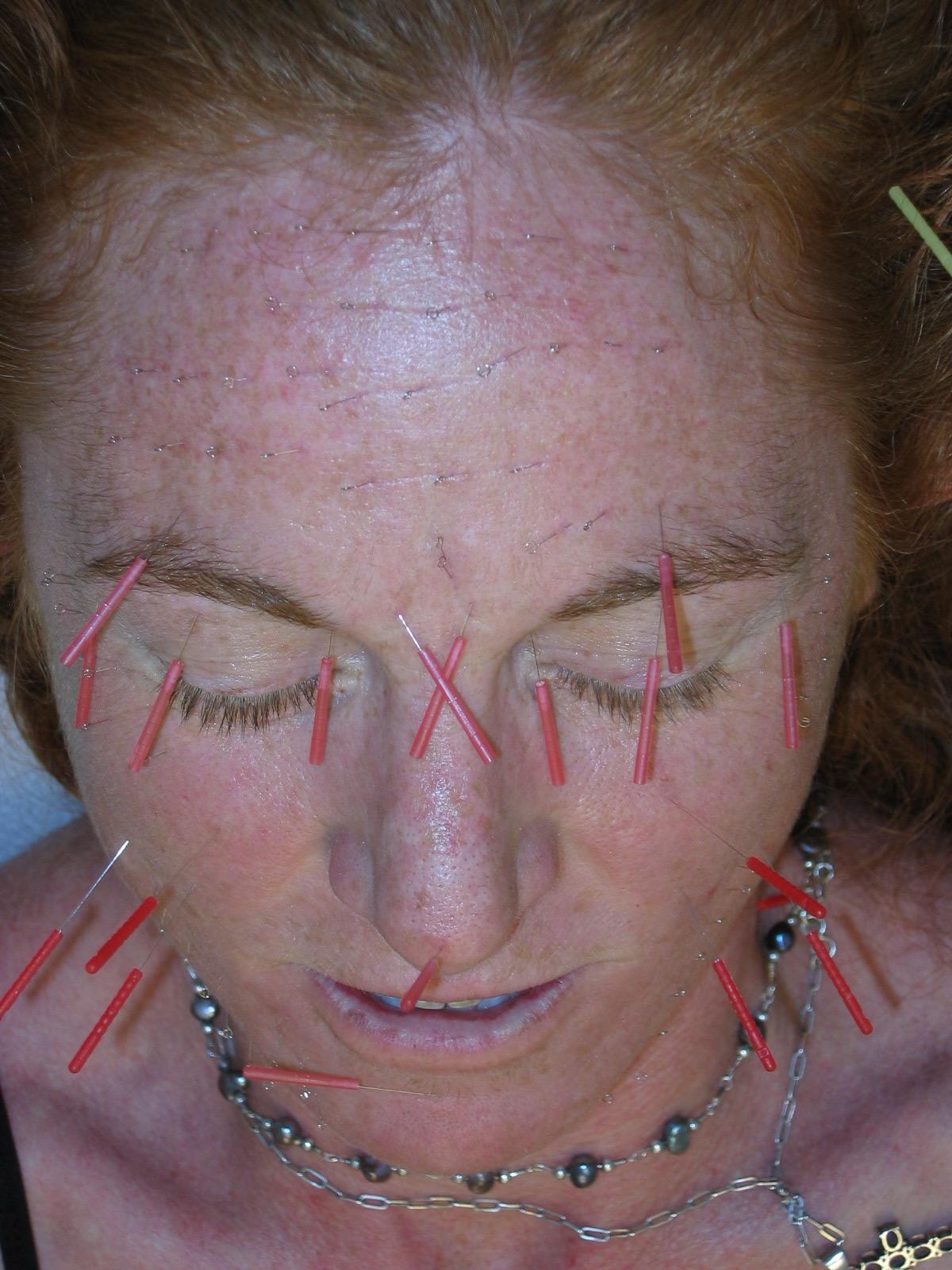 Facial Rejuvenation / Cosmetic Acupuncture - LuvLight ...